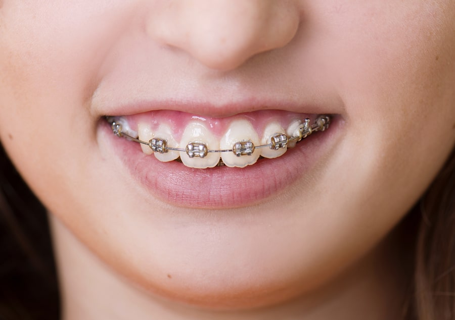 Girl mewing with braces.